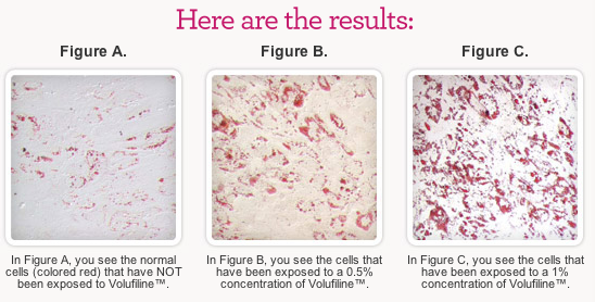 volufiline lab results