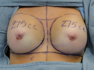 breast surgery complications